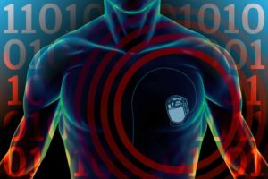 Is It Possible to Hack Medical Devices like Pacemaker and Insulin Pumps?